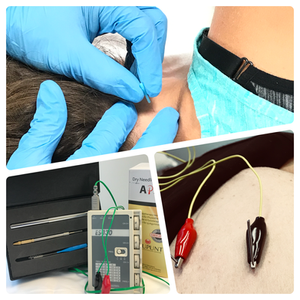 Dry needling for neck pain, headache, low back pain, thoracic pain, shoulder, knee, hip, elbow pain.