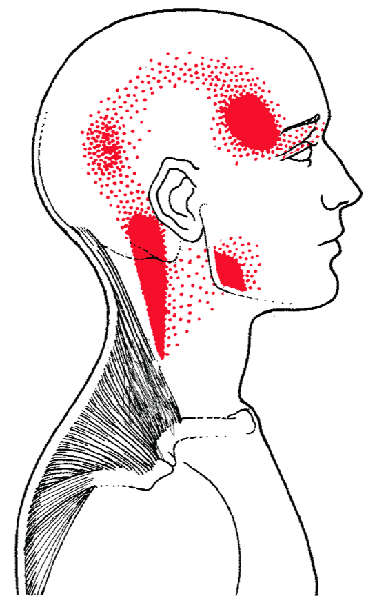 referred pain from trigger points in upper trapezius muscle