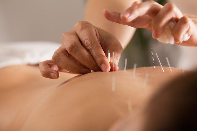 Acupuncture therapist inserting needles
