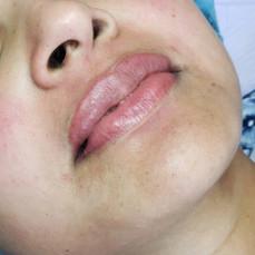 Lip Blush - Permanent Makeup