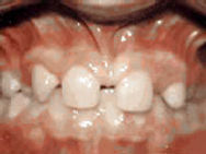 missing-lateral-incisors-before.jpg