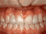missing-lateral-incisors-after.jpg