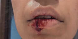 lip bleed