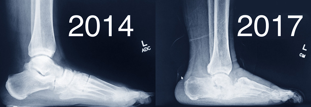 Charcot Foot before and after