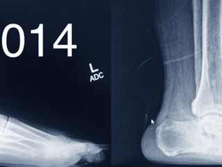 Charcot Foot/Ankle