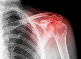 Injuries and Treatment of the Shoulder