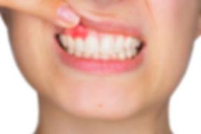 CinfaSalud-periodontitis-600.jpg