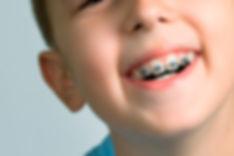 ortodoncia-infantil-dentalbell.jpg
