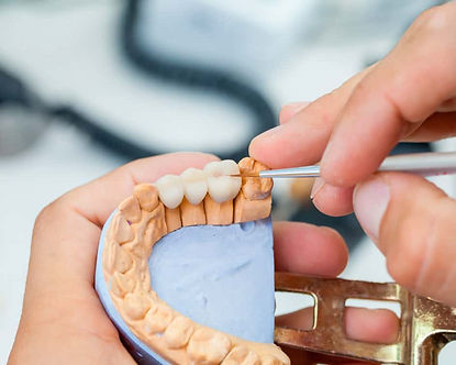 master-protesis-dentales_edited.jpg