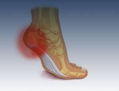 Osteopatia no tratamento de Fascite plantar