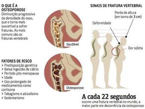 Osteopatia - Ossos frágeis
