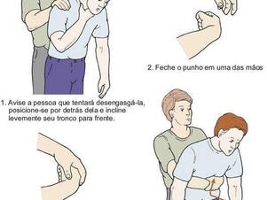 Osteosaúde - Como realizar a manobra de Heimlich