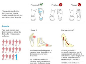 Osteopatia - A saúde dos seus pés!
