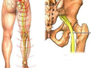 Osteopatia e Dor que irradia pela perna