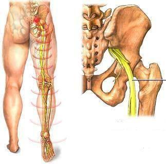 Osteopatia e a dor que irradia pela perna