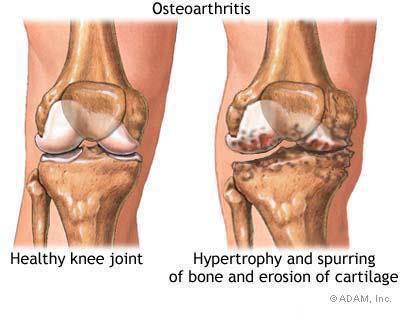 artroses no joelho