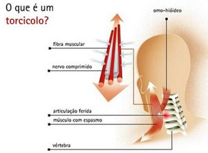 Osteopatia - Torcicolo