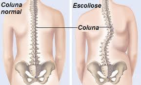 Osteopatia - Sabe o que é Escoliose infantil ?