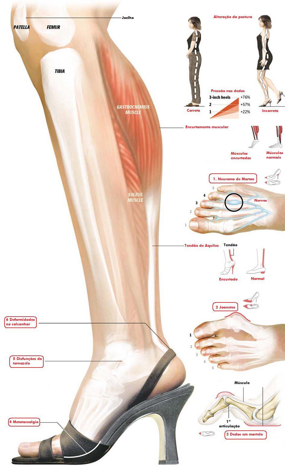lesões musculares, lesões articulares