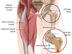 Osteopatia - Coxartrose