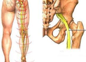Osteopatia - A ciática e o tratamento osteopático