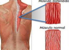 Osteopatia - Distensão Muscular