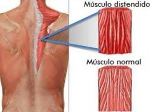 Osteopatia - Distensão Muscular