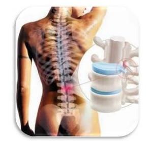 Lombalgia, coluna lombar, hérnia discal, ciática