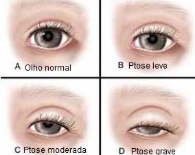 Osteopatia - Ptose