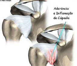 Osteopatia - Ombro - Capsulite adesiva ou ombro congelado