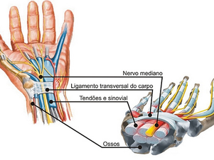 Osteopatia - Sindrome do túnel do carpo