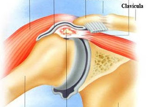 Osteopatia - Capsulite adesiva ou ombro congelado