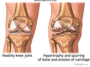 Osteopatia - Patologias do joelho