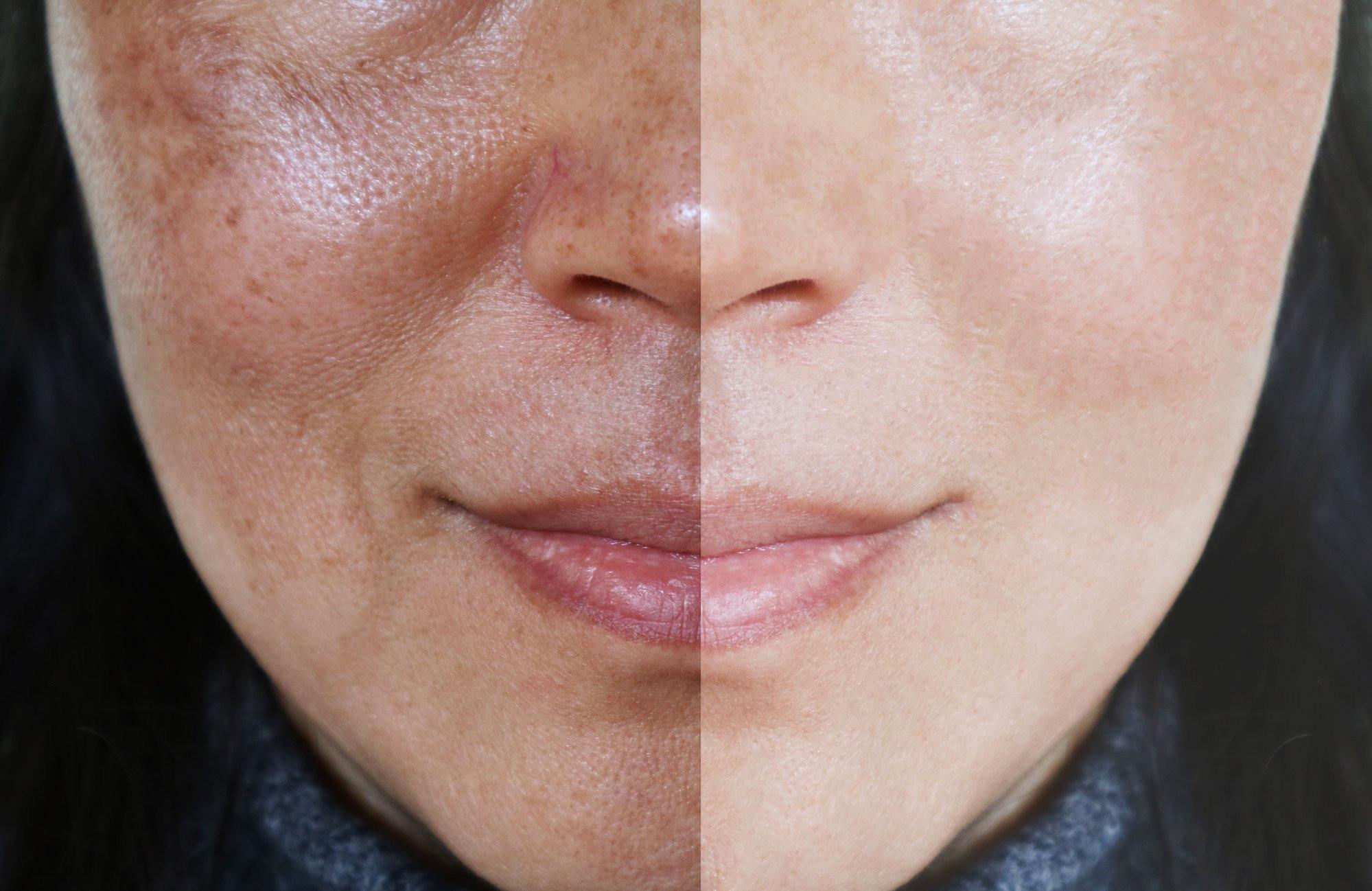 Melasma / Pigmentation / Freckles