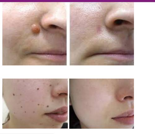 Moles / Skin tags / Warts / Corn Removal