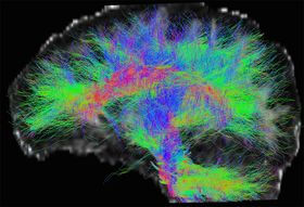 neuroimagerie.jpg
