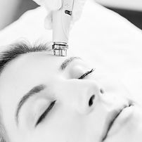 hydrafacial-treatment_edited.jpg