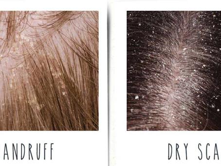 Dandruff vs Dry Scalp