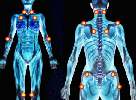Coinvolgimento delle Piccole fibre nervose in pazienti indirizzati per fibromialgia