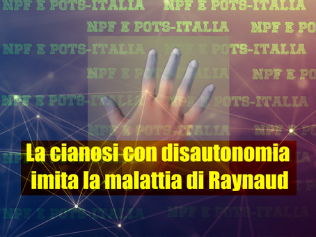 La cianosi con disautonomia imita la malattia di Raynaud