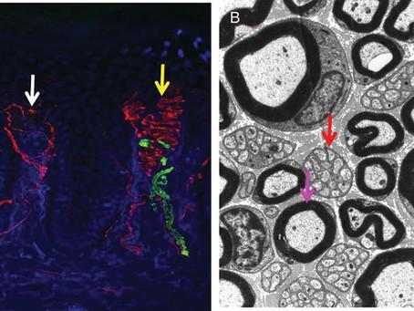 L'Approccio Clinico alla Neuropatia delle Piccole Fibre e alle Canalopatie Dolorose