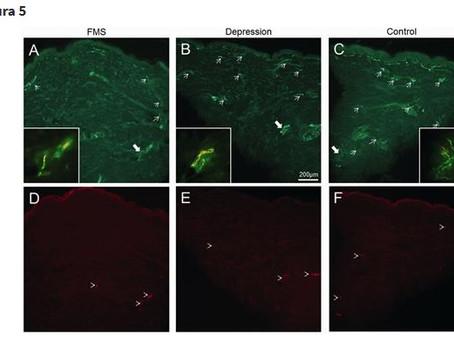 Patologia delle piccole fibre in pazienti con sindrome fibromialgica