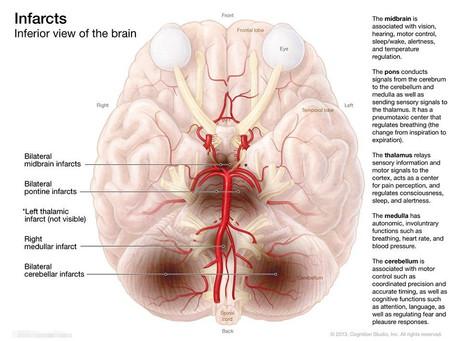 Denervazione cutanea sensoriale e autonomica in CADASIL.
