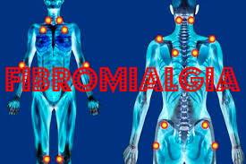 La riduzione dell'innervazione cutanea è associata a un fenotipo di fibromialgia grave