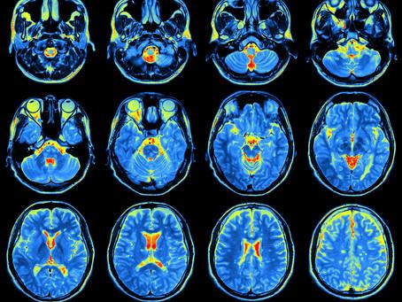 Infiammazione del cervello scoperta per la prima volta in pazienti con fibromialgia