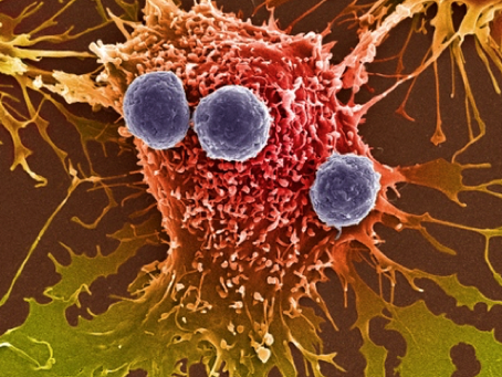 Profilo immunologico dei pazienti con fibromialgia