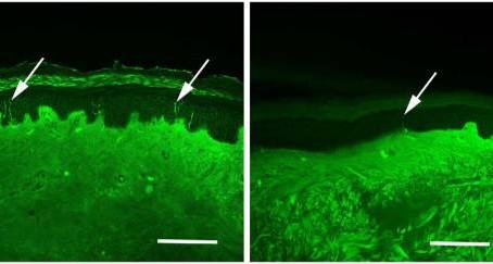 Il ruolo e l'importanza della neuropatia delle fibre piccole nel dolore fibromialgico