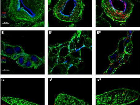 I depositi di globotriaosilceramide 3 sono specifici per la malattia di Fabry con mutazioni classich