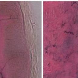 Neuropatia periferica dolorosa indotta da Chinolone: una relazione sui casi e una revisione della le