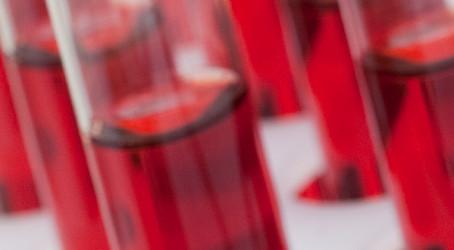 Valore diagnostico degli esami del sangue per cause occulte di polineuropatia delle piccole fibre in